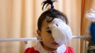 ayla, penderita kanker retinablastoma, foto hadi