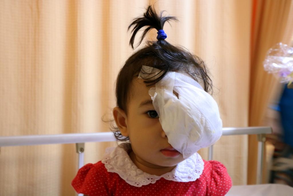 Kisah Ayla, Balita Penderita Retinablastoma
